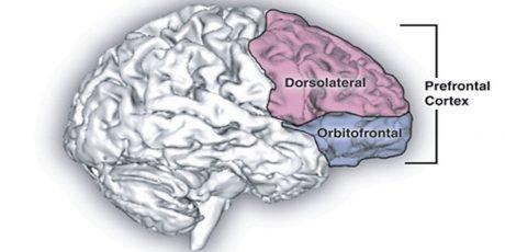 neuroimaging-trauma-cambia-il-cervello