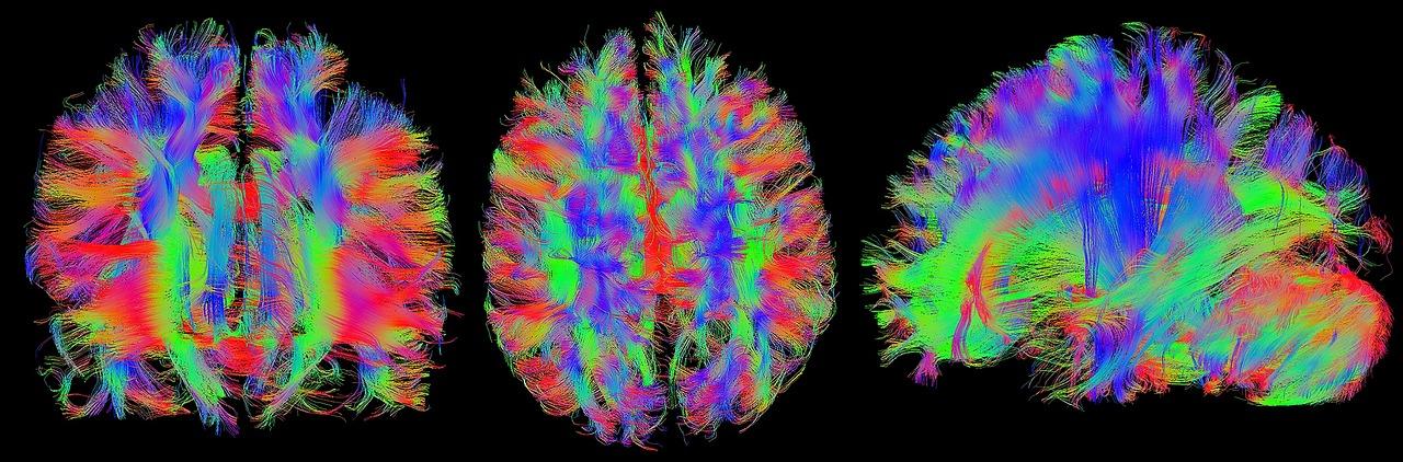 danni tessuto cerebrale declino cognitivo