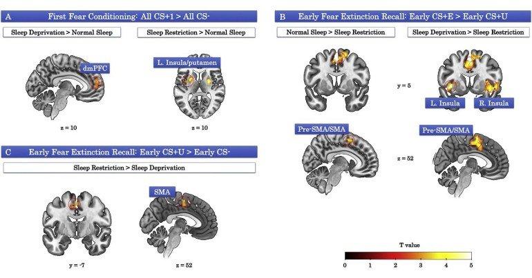 sleep-loss-learning-neurosinceews